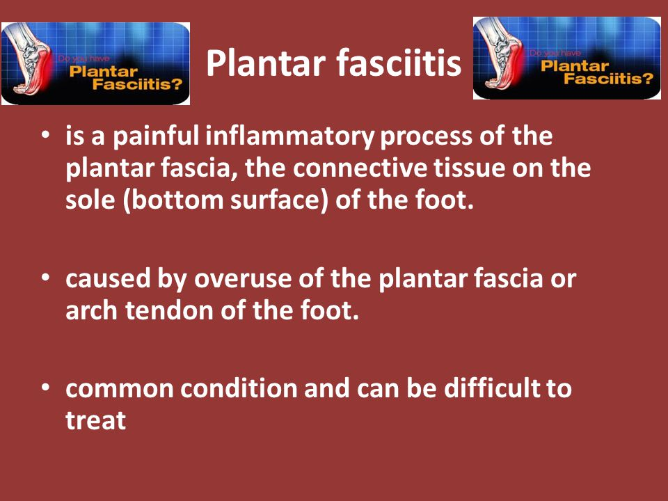 Plantar Fasciitis plantar fascia is a thick fibrous band of connective tissue originating on the bottom surface of the calcaneus (heel bone) and extending along the sole of the foot towards the toes.