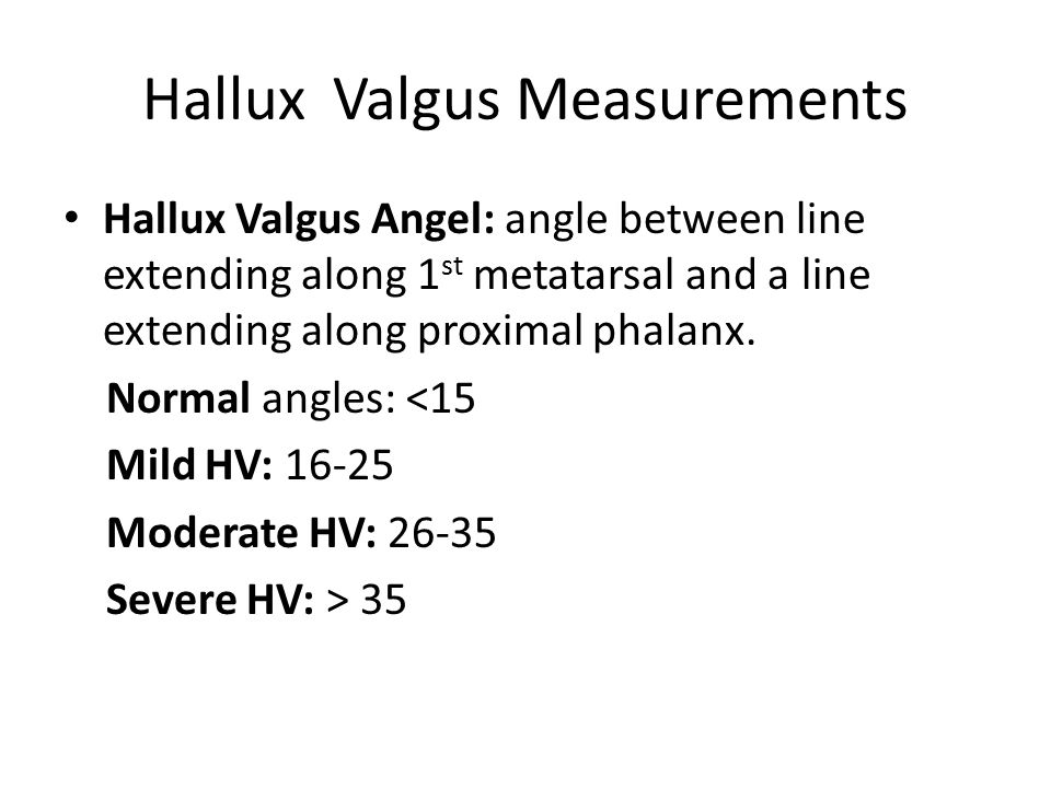 Hallux Valgus Measurements Hallux Valgus Angel: angle between line extending along 1 st metatarsal and a line extending along proximal phalanx.