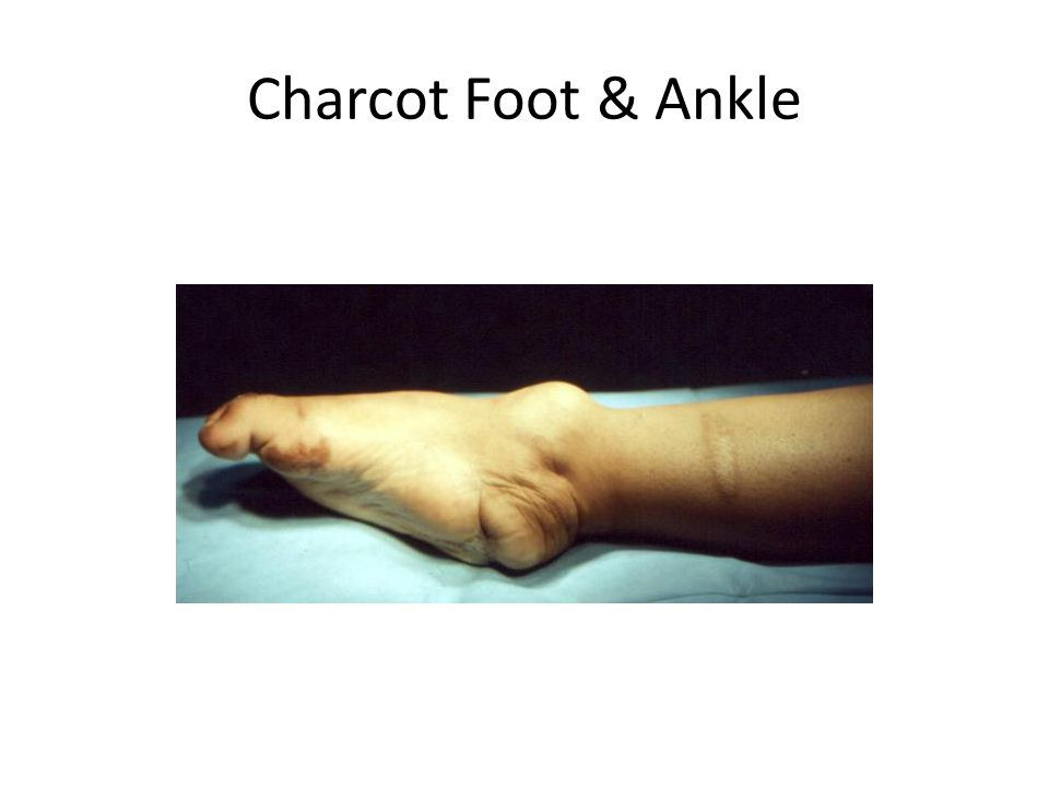 Charcot Foot & Ankle