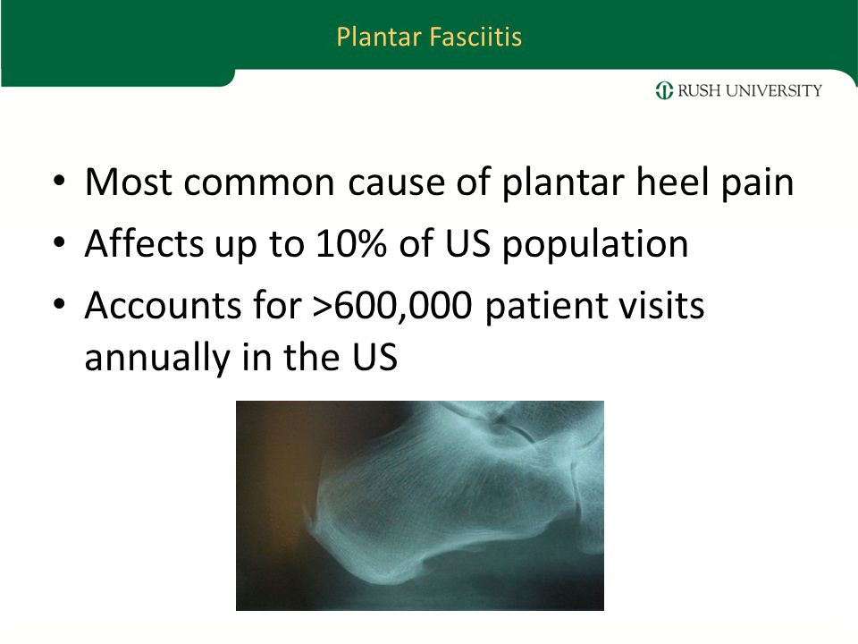 Plantar Fasciitis Most common cause of plantar heel pain Affects up to 10% of US population Accounts for >600,000 patient visits annually in the US
