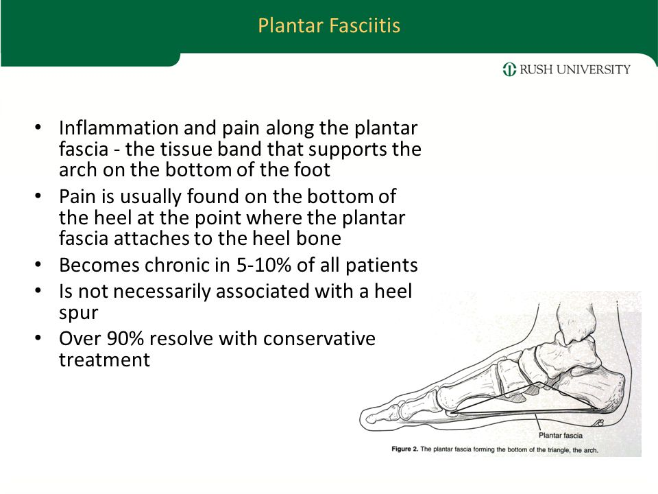 Plantar Fasciitis Inflammation and pain along the plantar fascia - the tissue band that supports the arch on the bottom of the foot Pain is usually found on the bottom of the heel at the point where the plantar fascia attaches to the heel bone Becomes chronic in 5-10% of all patients Is not necessarily associated with a heel spur Over 90% resolve with conservative treatment