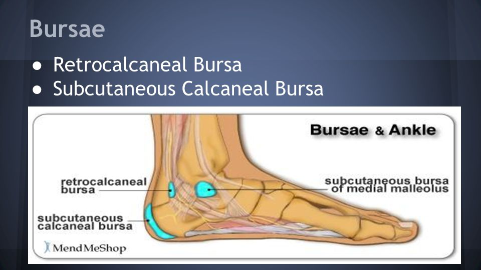 Bursae ● Retrocalcaneal Bursa ● Subcutaneous Calcaneal Bursa