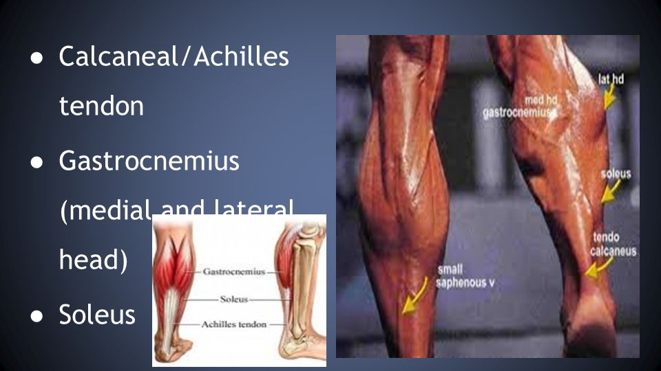 ● Calcaneal/Achilles tendon ● Gastrocnemius (medial and lateral head) ● Soleus