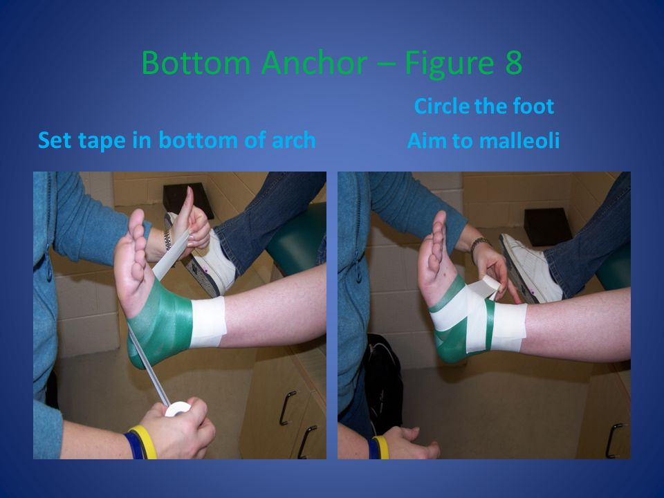 Bottom Anchor – Figure 8 Set tape in bottom of arch Circle the foot Aim to malleoli