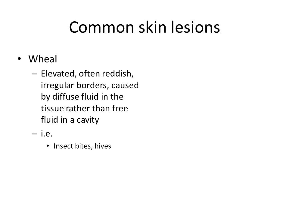 Common skin lesions Wheal – Elevated, often reddish, irregular borders, caused by diffuse fluid in the tissue rather than free fluid in a cavity – i.e.
