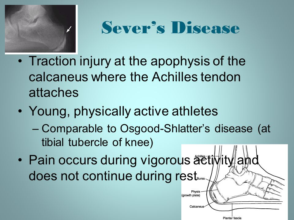 Sever's Disease Traction injury at the apophysis of the calcaneus where the Achilles tendon attaches Young, physically active athletes –Comparable to