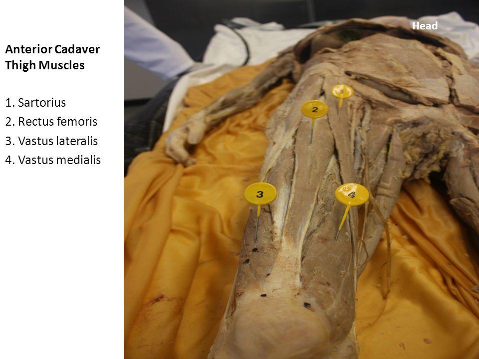 Anterior Cadaver Thigh Muscles 1.Tensor fasciae latae 2.