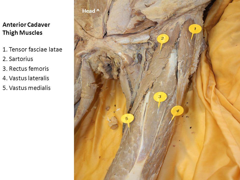 Anterior Cadaver Thigh Muscles 1.Vastus lateralis 2.