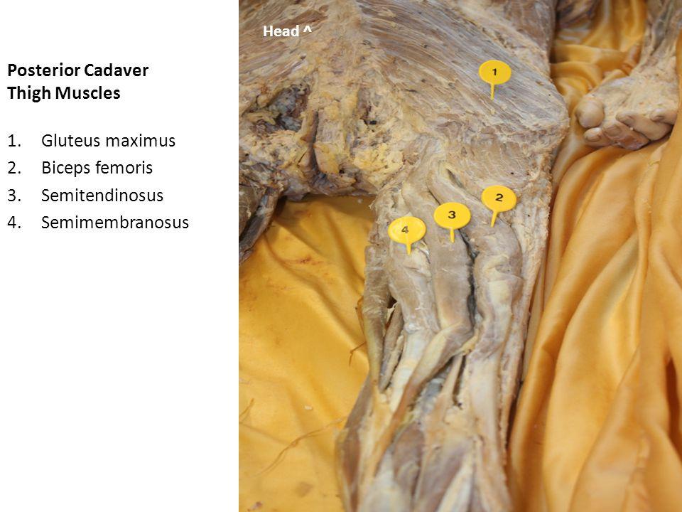 Posterior Cadaver Thigh Muscles 1.Gluteus maximus 2.Iliotibial tract 3.Biceps femoris 4.Semitendinosus 5.Semimembranosus Head -> Head ^