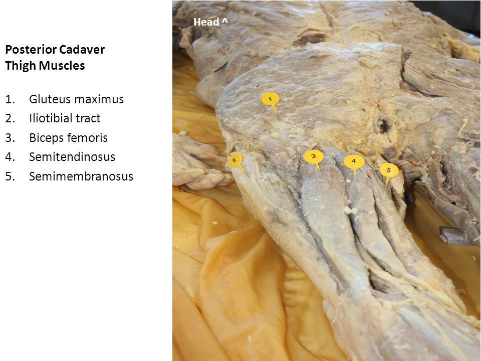 Posterior Cadaver Thigh Muscles 1.Gluteus maximus 2.Gluteus medius Head ^