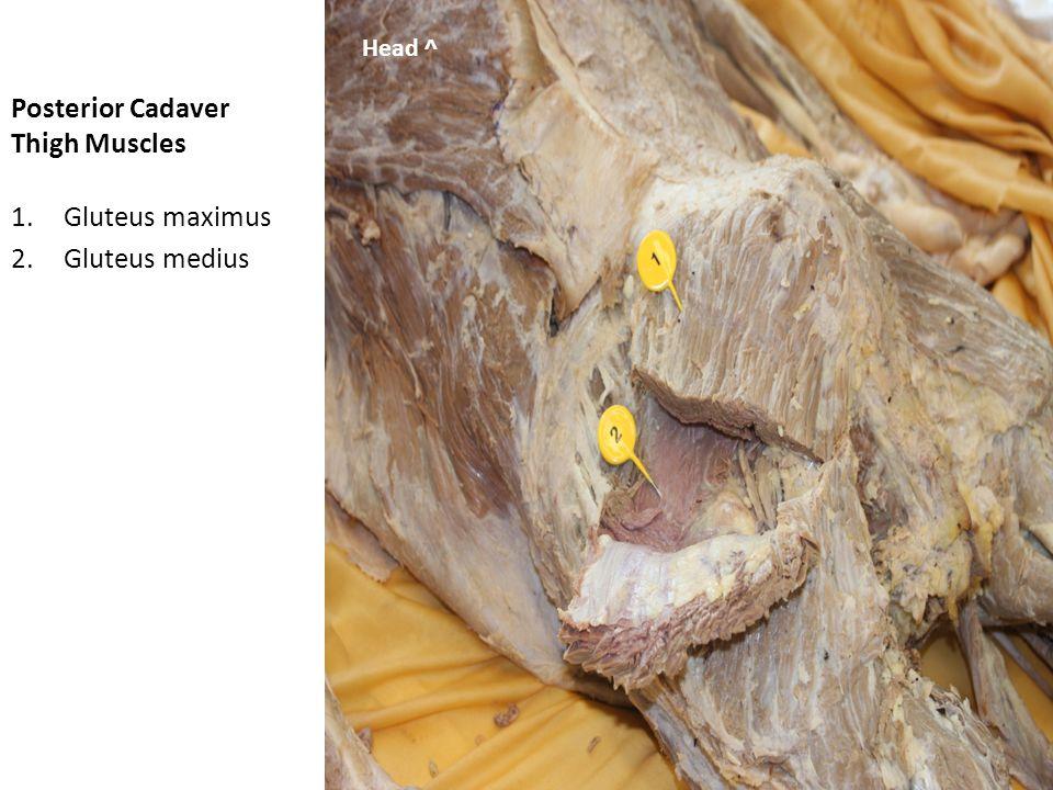 Anterior Cadaver Leg Muscles 1.Gastrocnemius 2.Soleus 3.Tibialis anterior Knee Lateral