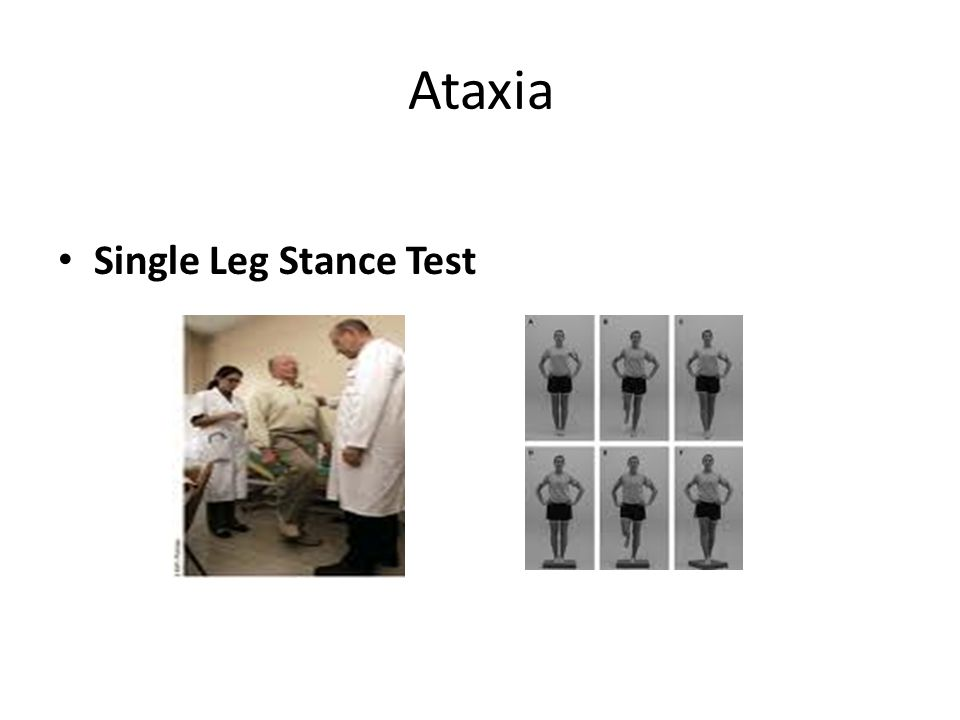 Ataxia Single Leg Stance Test