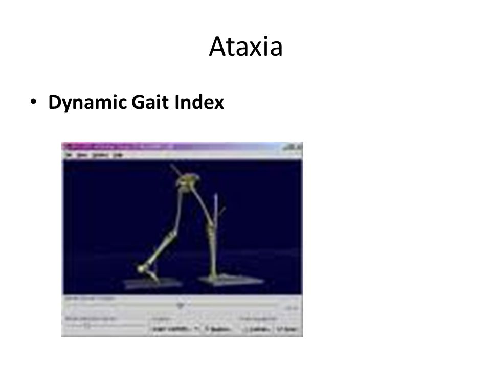 Ataxia Dynamic Gait Index