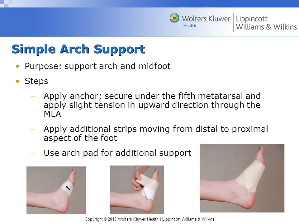 Copyright © 2013 Wolters Kluwer Health | Lippincott Williams & Wilkins Simple Arch Support Purpose: support arch and midfoot Steps –Apply anchor; secu