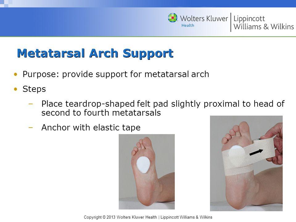 Copyright © 2013 Wolters Kluwer Health | Lippincott Williams & Wilkins Metatarsal Arch Support Purpose: provide support for metatarsal arch Steps –Pla