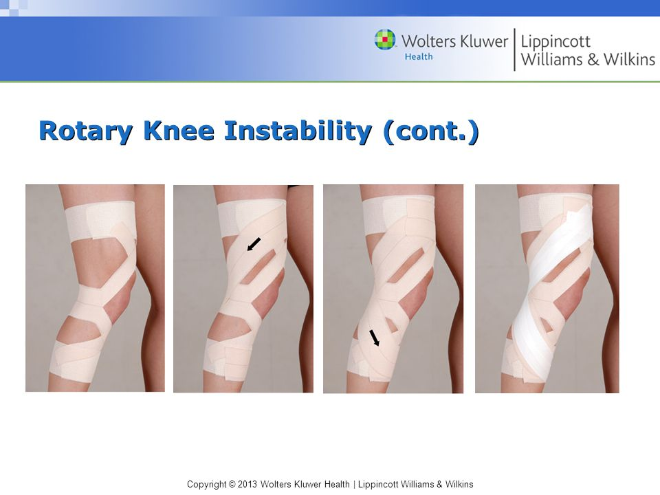 Copyright © 2013 Wolters Kluwer Health | Lippincott Williams & Wilkins Rotary Knee Instability (cont.)