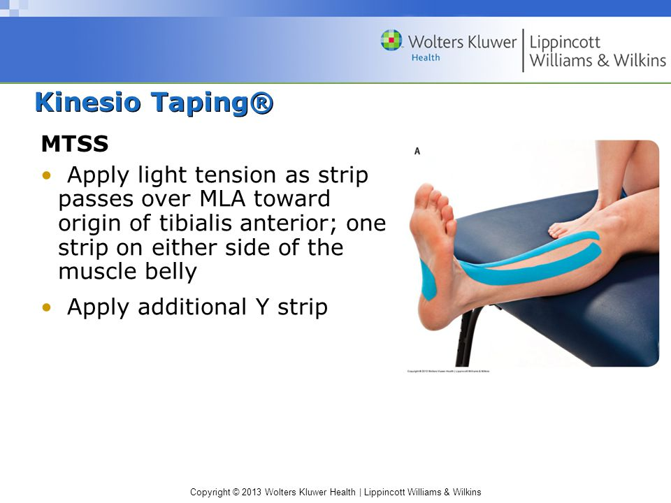 Copyright © 2013 Wolters Kluwer Health | Lippincott Williams & Wilkins Kinesio Taping® MTSS Apply light tension as strip passes over MLA toward origin