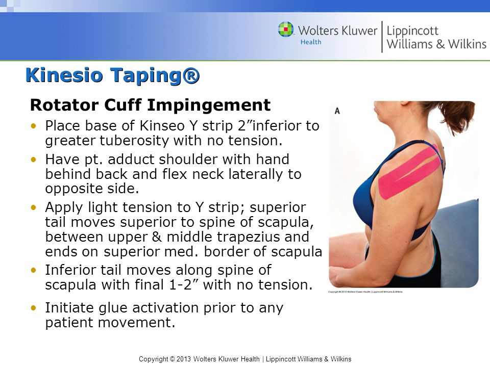 """Kinesio Taping® Rotator Cuff Impingement Place base of Kinseo Y strip 2""""inferior to greater tuberosity with no tension. Have pt. adduct shoulder with"""