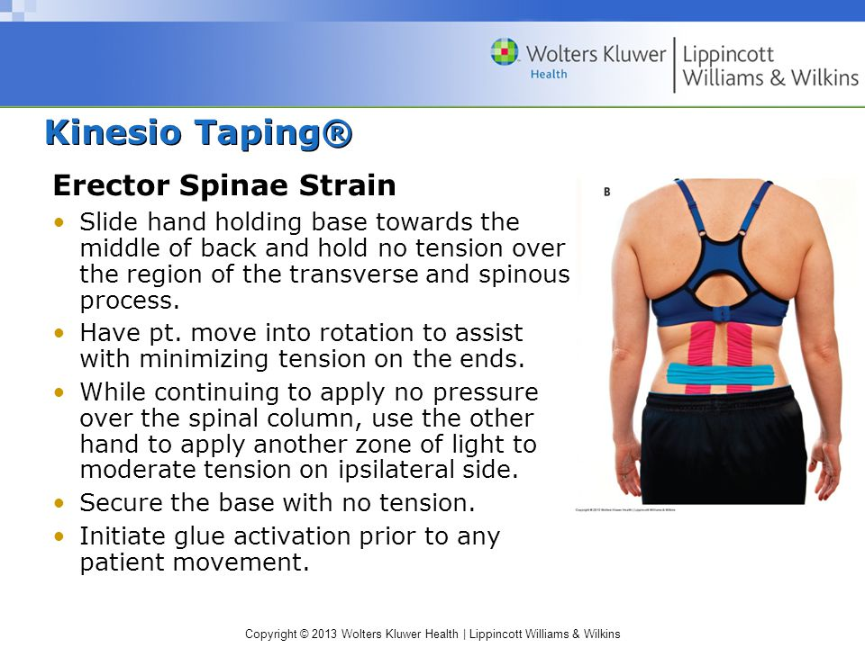 Copyright © 2013 Wolters Kluwer Health | Lippincott Williams & Wilkins Kinesio Taping® Erector Spinae Strain Slide hand holding base towards the middl