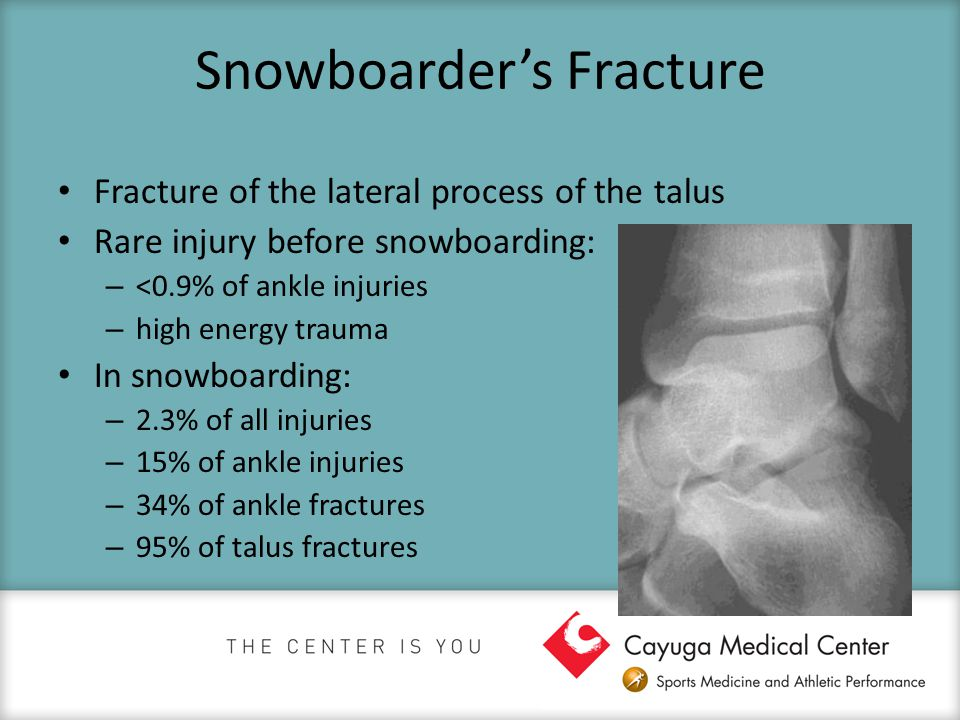 Snowboarder's Fracture Fracture of the lateral process of the talus Rare injury before snowboarding: – <0.9% of ankle injuries – high energy trauma In