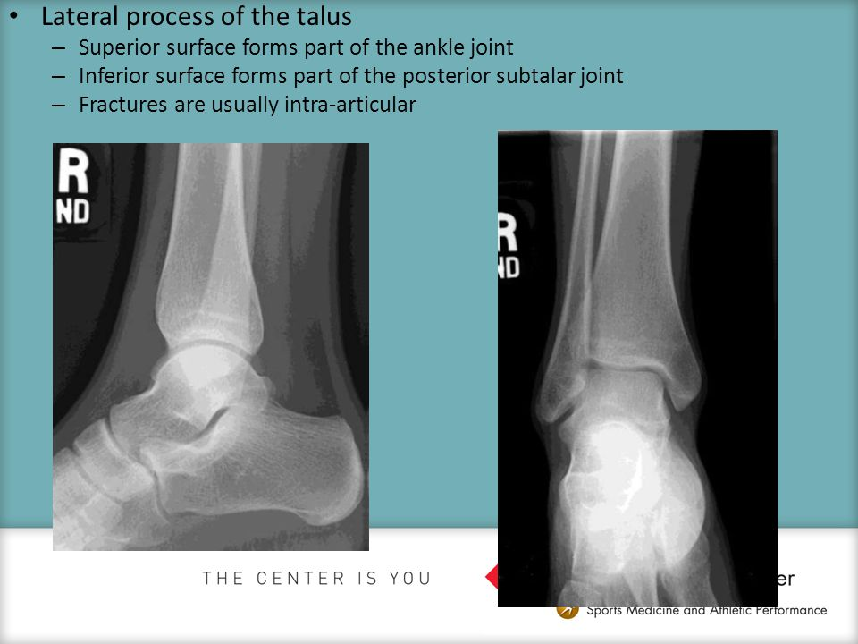 Lateral process of the talus – Superior surface forms part of the ankle joint – Inferior surface forms part of the posterior subtalar joint – Fracture