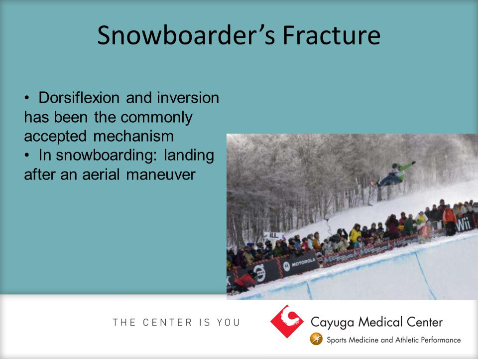 Snowboarder's Fracture Dorsiflexion and inversion has been the commonly accepted mechanism In snowboarding: landing after an aerial maneuver
