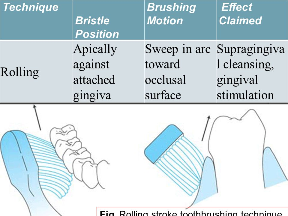 Technique Bristle Position Brushing Motion Effect Claimed Rolling Apically against attached gingiva Sweep in arc toward occlusal surface Supragingiva l cleansing, gingival stimulation Fig.