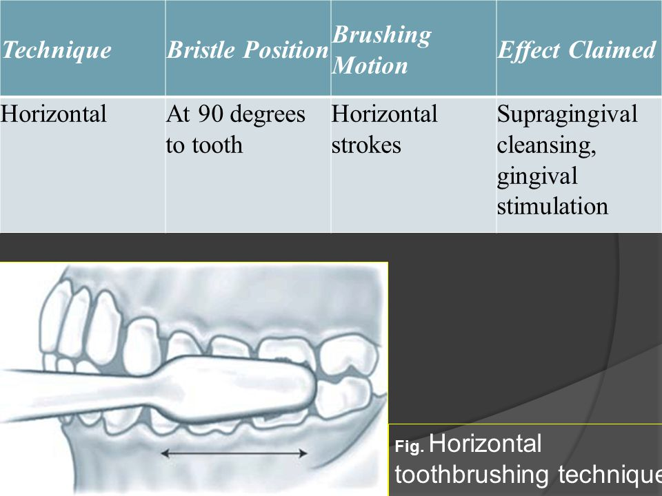TechniqueBristle Position Brushing Motion Effect Claimed HorizontalAt 90 degrees to tooth Horizontal strokes Supragingival cleansing, gingival stimula