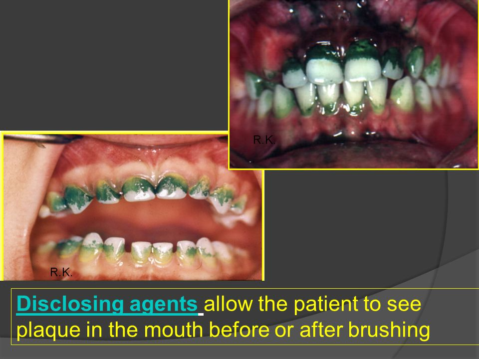 Disclosing agentsDisclosing agents allow the patient to see plaque in the mouth before or after brushing