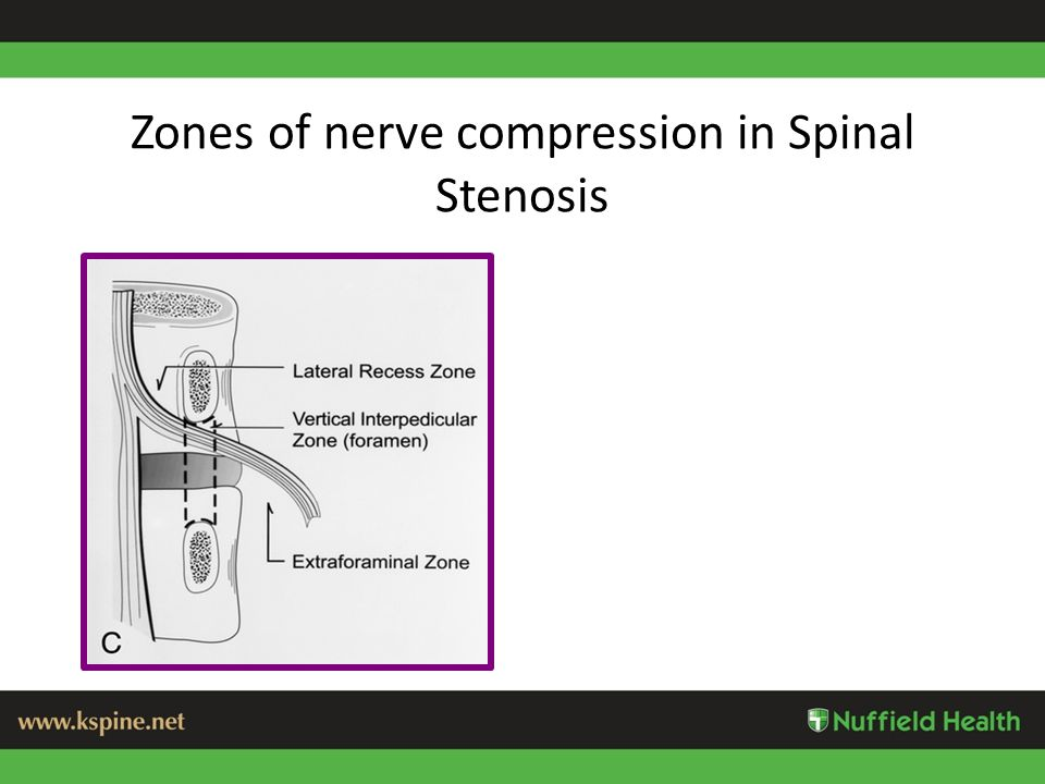 Zones of nerve compression in Spinal Stenosis