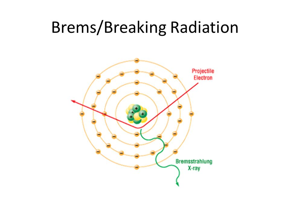 Brems/Breaking Radiation