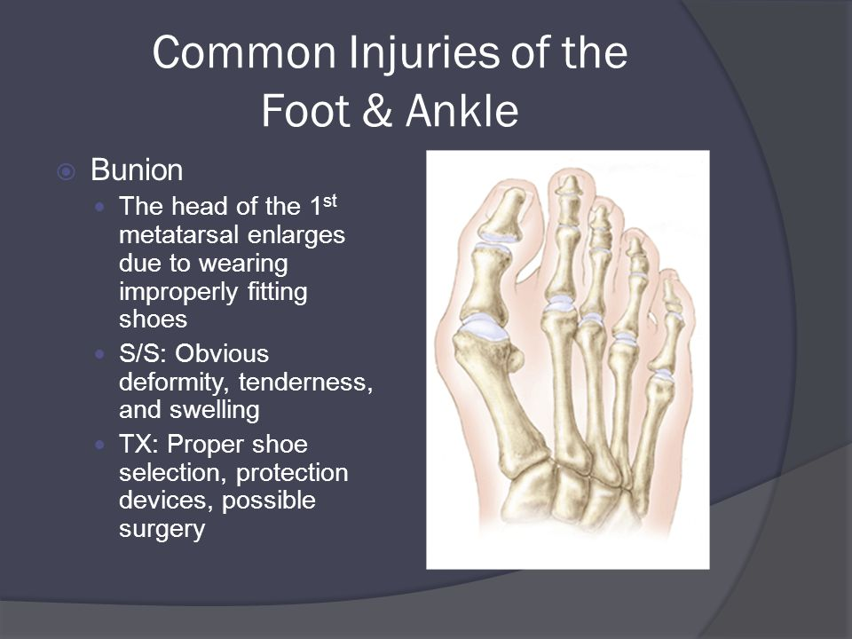 Common Injuries of the Foot & Ankle  Bunion The head of the 1 st metatarsal enlarges due to wearing improperly fitting shoes S/S: Obvious deformity, tenderness, and swelling TX: Proper shoe selection, protection devices, possible surgery