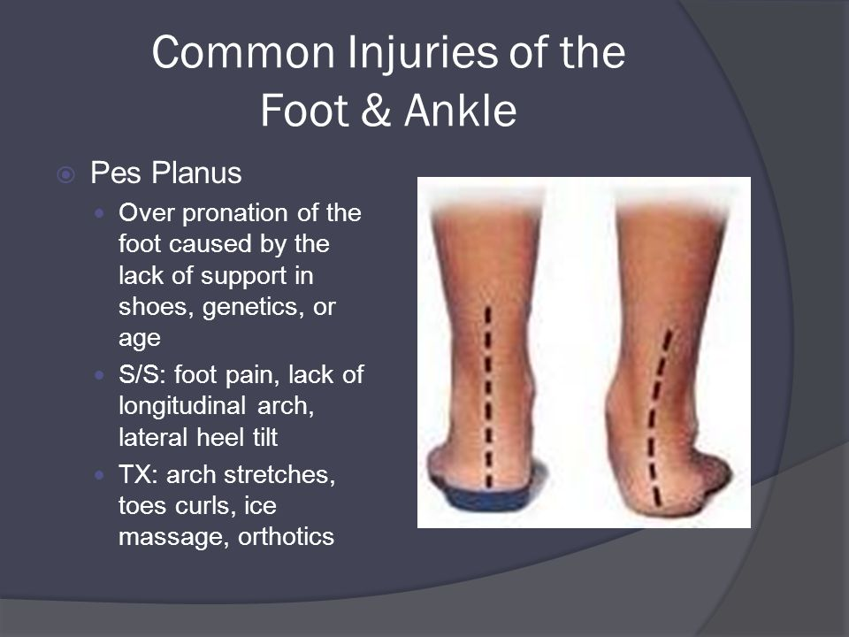 Common Injuries of the Foot & Ankle  Pes Planus Over pronation of the foot caused by the lack of support in shoes, genetics, or age S/S: foot pain, lack of longitudinal arch, lateral heel tilt TX: arch stretches, toes curls, ice massage, orthotics