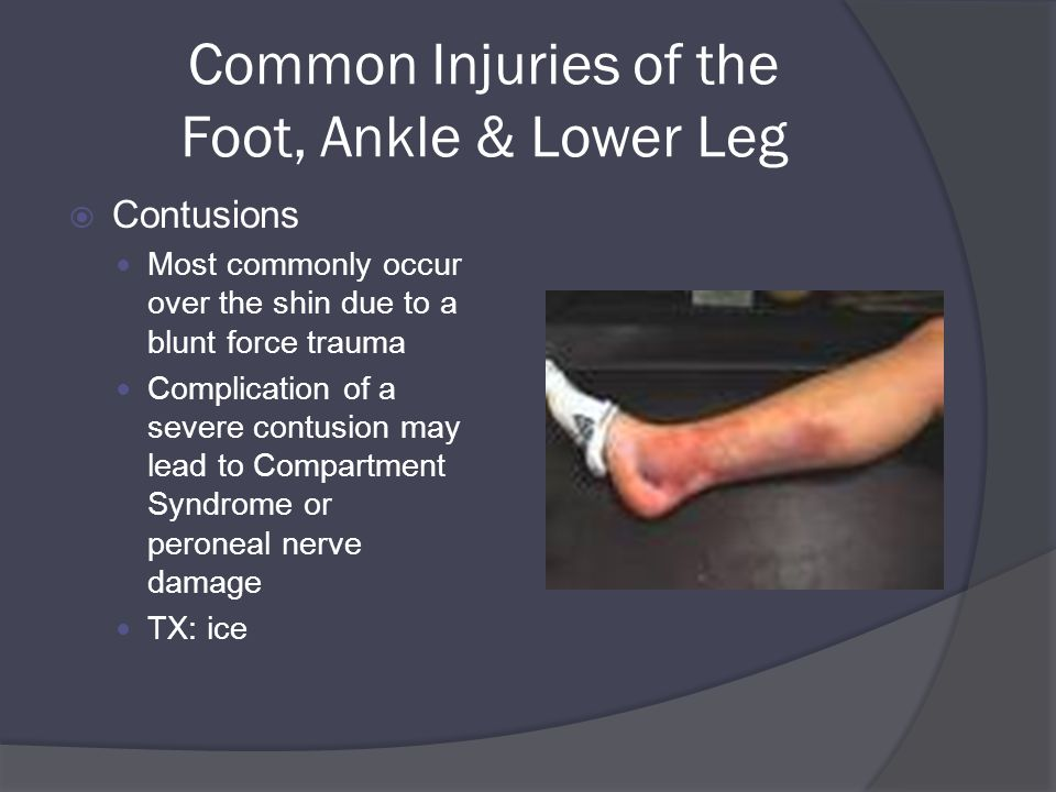 Common Injuries of the Foot, Ankle & Lower Leg  Contusions Most commonly occur over the shin due to a blunt force trauma Complication of a severe contusion may lead to Compartment Syndrome or peroneal nerve damage TX: ice