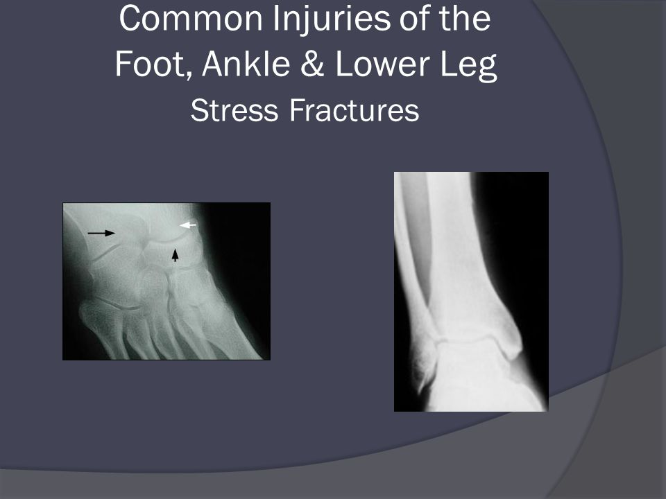 Common Injuries of the Foot, Ankle & Lower Leg Stress Fractures