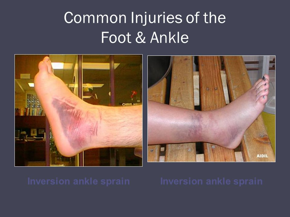 Common Injuries of the Foot & Ankle Inversion ankle sprain