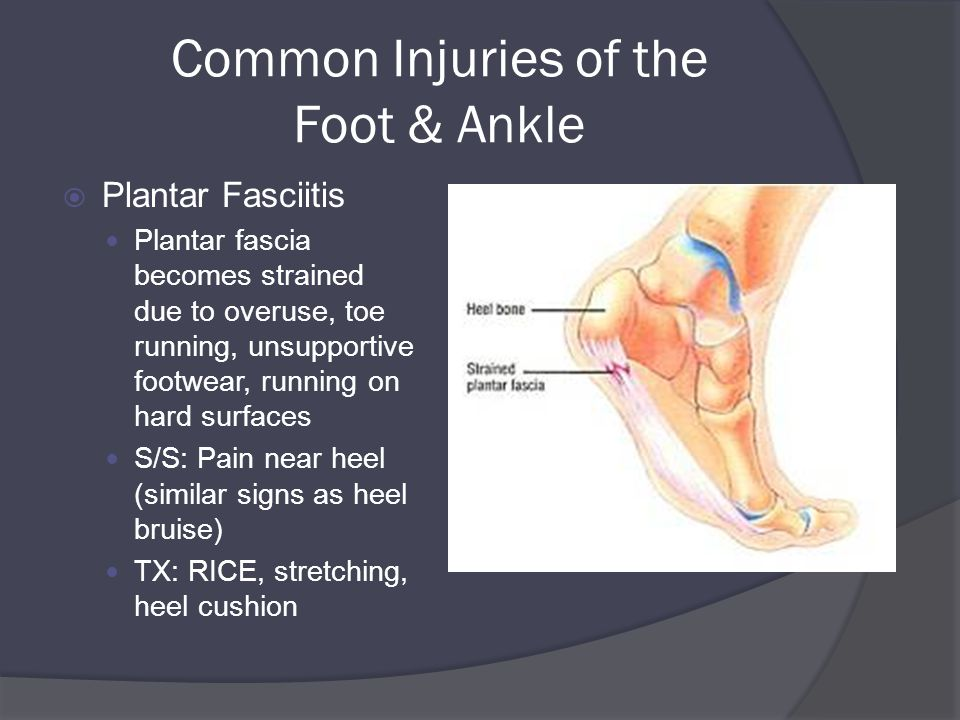 Common Injuries of the Foot & Ankle  Plantar Fasciitis Plantar fascia becomes strained due to overuse, toe running, unsupportive footwear, running on hard surfaces S/S: Pain near heel (similar signs as heel bruise) TX: RICE, stretching, heel cushion