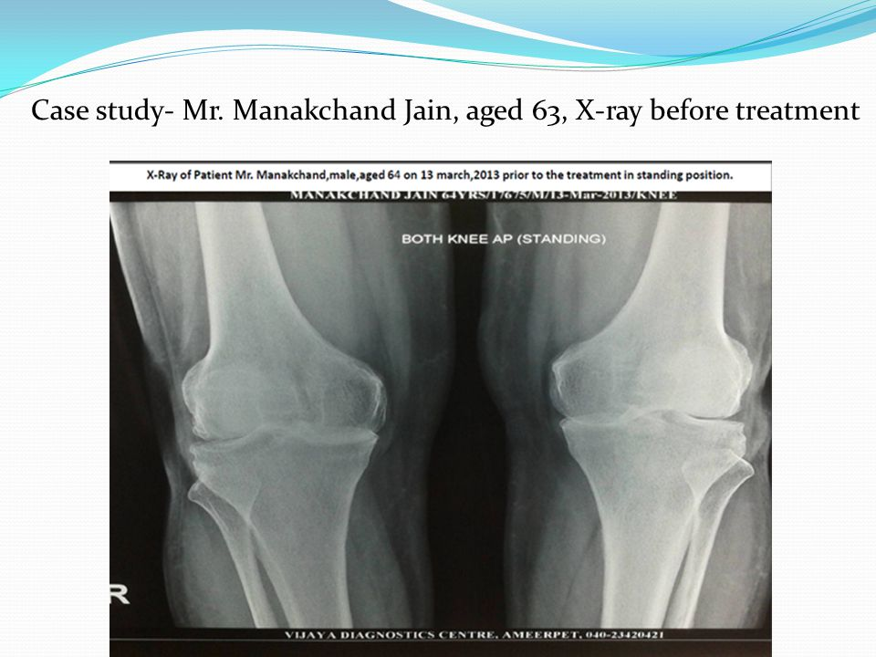 Case study- Mr. Manakchand Jain, aged 63, X-ray before treatment