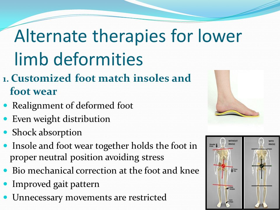 1. Customized foot match insoles and foot wear Realignment of deformed foot Even weight distribution Shock absorption Insole and foot wear together ho