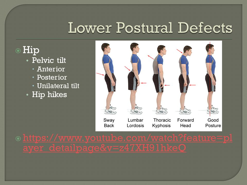  Hip Pelvic tilt  Anterior  Posterior  Unilateral tilt Hip hikes  https://www.youtube.com/watch feature=pl ayer_detailpage&v=z47XH91hkeQ https://www.youtube.com/watch feature=pl ayer_detailpage&v=z47XH91hkeQ