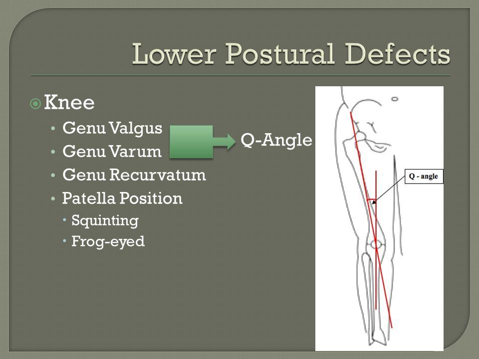  Knee Genu Valgus Genu Varum Genu Recurvatum Patella Position  Squinting  Frog-eyed Q-Angle