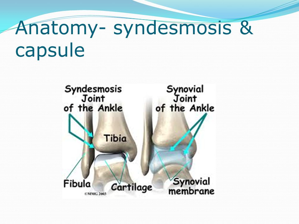 Other injuries to note Fractured calcaneum (a 'Lovers' or 'Don Juan' fracture!)- fall from height or occasionally with an inversion injury.