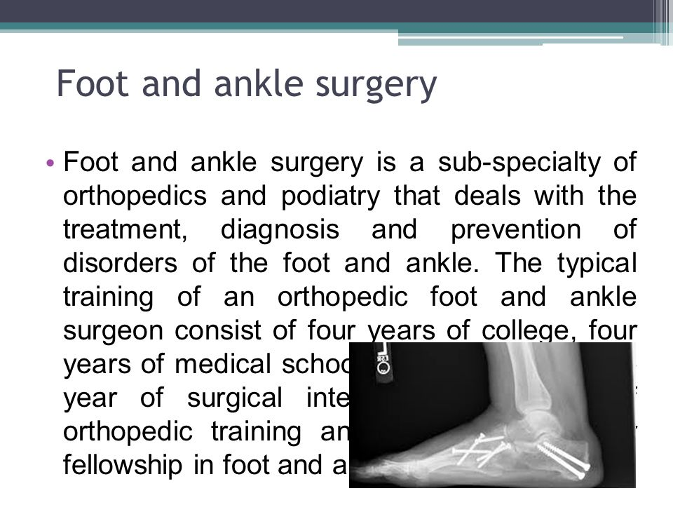 Foot and ankle surgery Foot and ankle surgery is a sub-specialty of orthopedics and podiatry that deals with the treatment, diagnosis and prevention o
