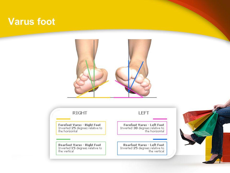Varus foot