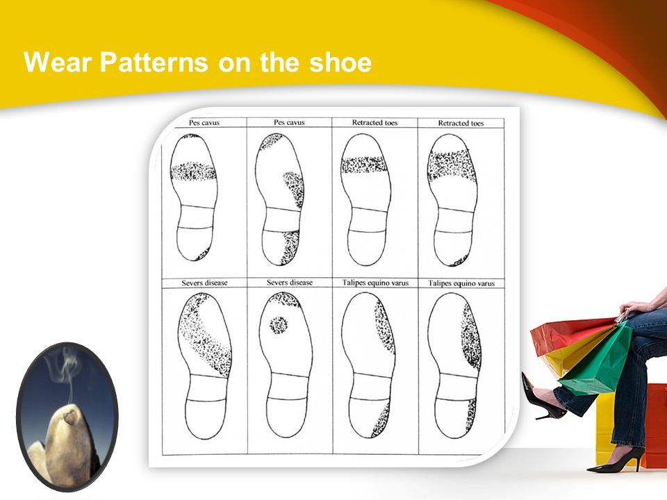 Wear Patterns on the shoe