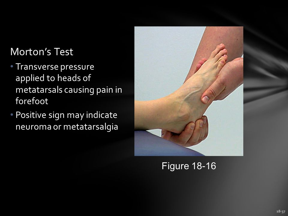 18-37 Morton's Test Transverse pressure applied to heads of metatarsals causing pain in forefoot Positive sign may indicate neuroma or metatarsalgia Figure 18-16