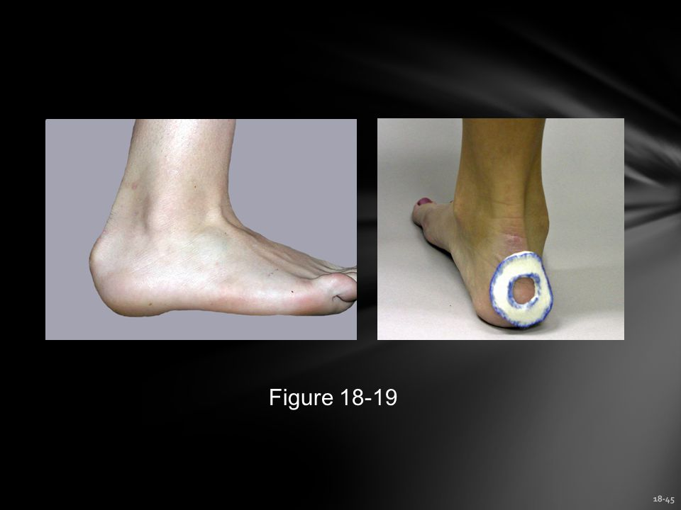 18-45 Figure 18-19
