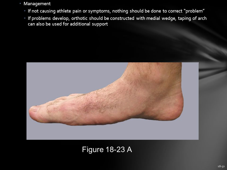 18-52 Management If not causing athlete pain or symptoms, nothing should be done to correct problem If problems develop, orthotic should be constructed with medial wedge, taping of arch can also be used for additional support Figure 18-23 A