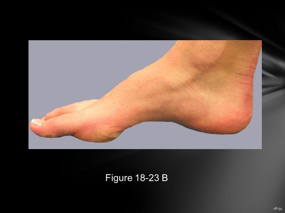 18-54 Figure 18-23 B