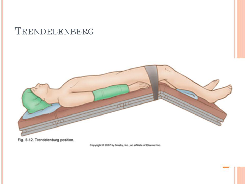 T RENDELENBERG
